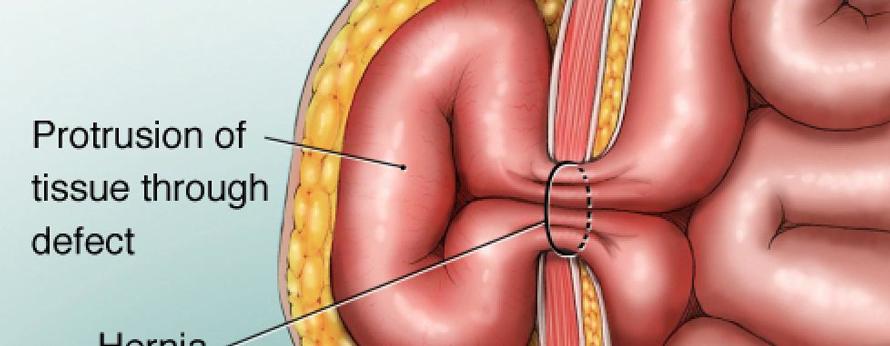 ventral-hernia2
